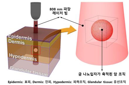 다중층으로 구성된 유방조직에서의 금나노입자를 이용한 광열 유방암치료 모식도. [사진=